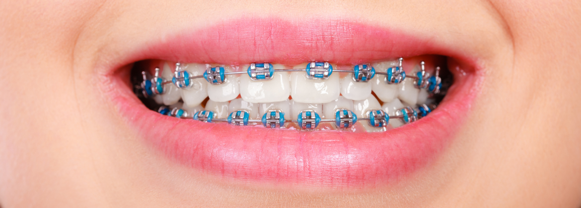 Braces with blue rubber bands