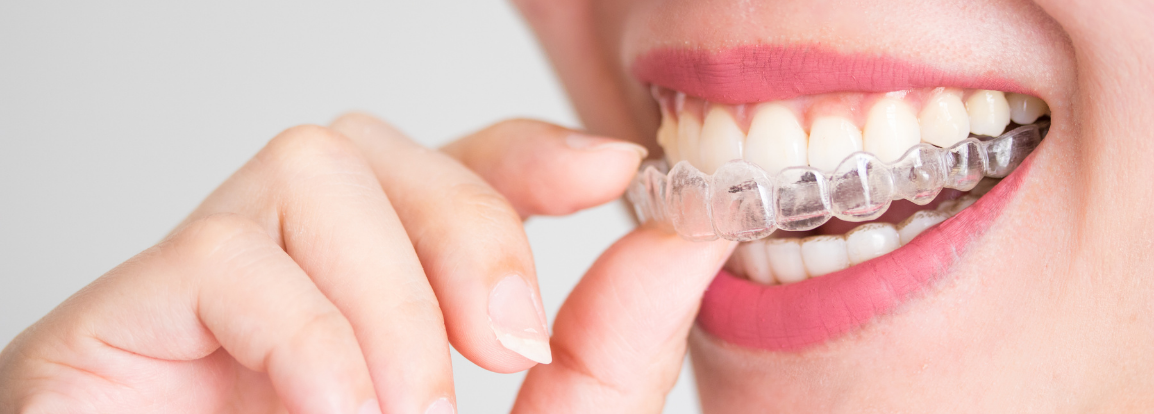 Woman holding clear aligners in her mouth