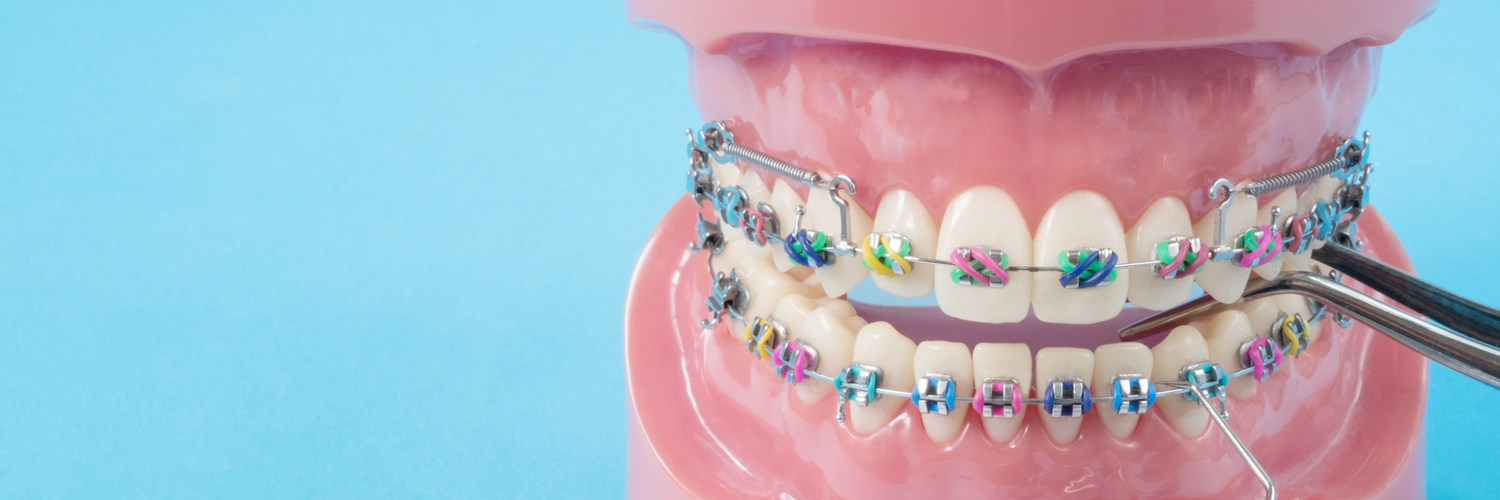 The Do's and Don'ts For Caring For Your Braces